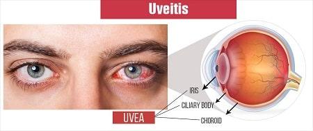 Uvetis Clinic